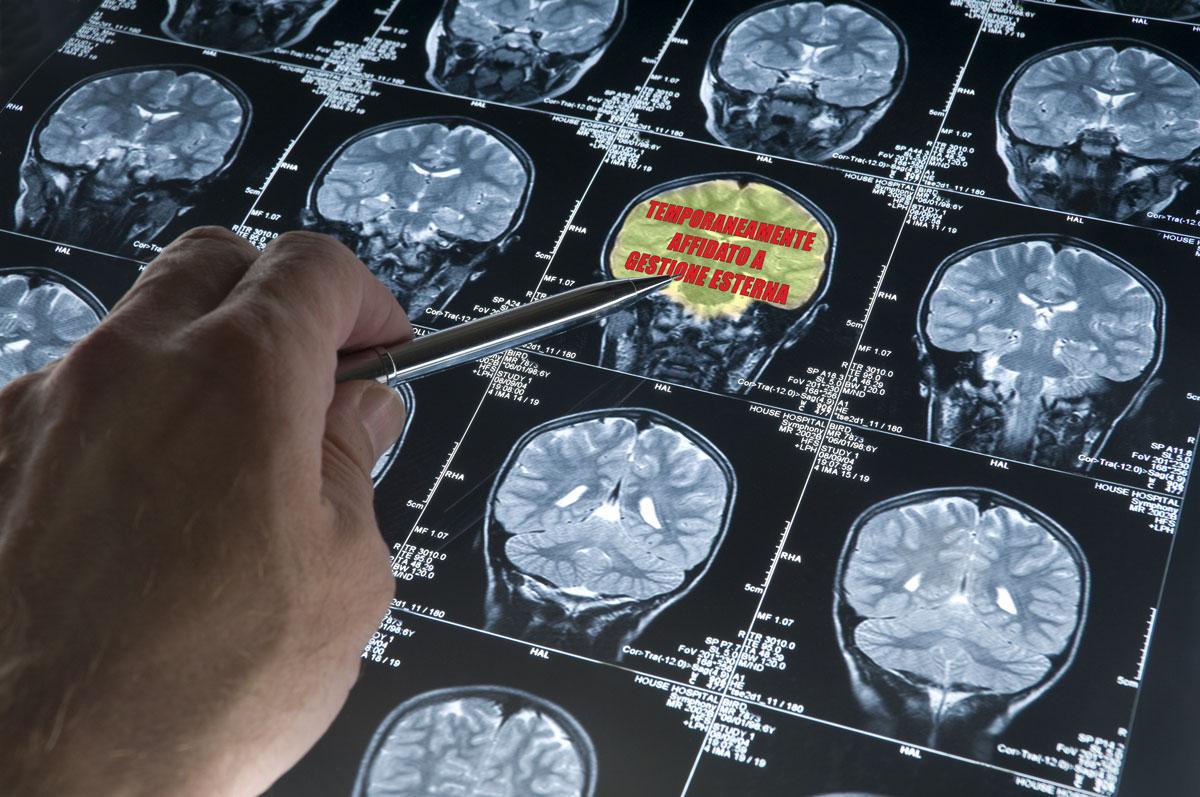 ingombranti-cervelli